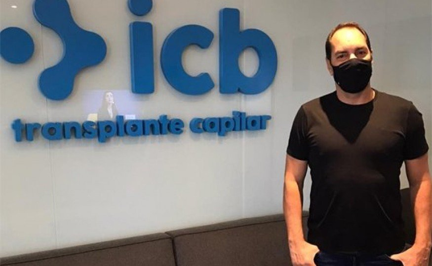 icb Transplante Capilar recebe ex-jogador Edmundo