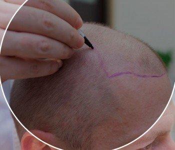 Como funciona o implante capilar?