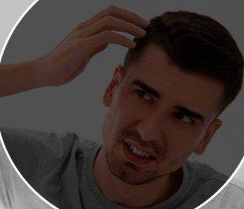 Como fica o volume dos cabelos, após o implante capilar
