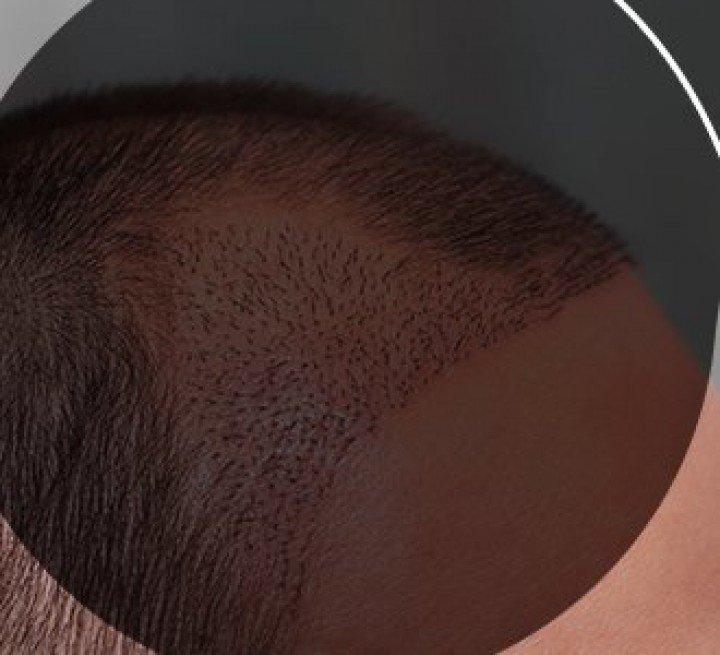 Crescimento do cabelo após o transplante capilar - como funciona?